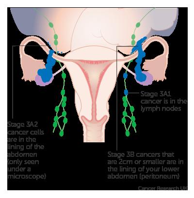 cancer of abdominal lymph nodes