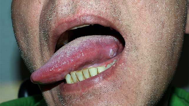 cancer on tip of tongue)