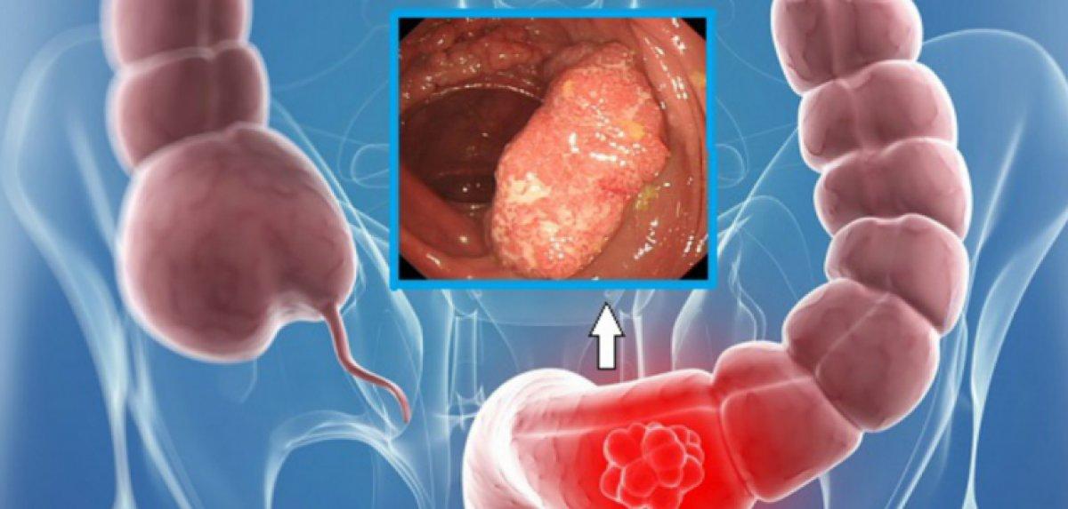 cancer sigmoidian simptome