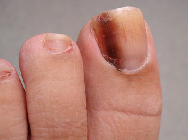 Semne pe unghie de cancer | triplus.ro
