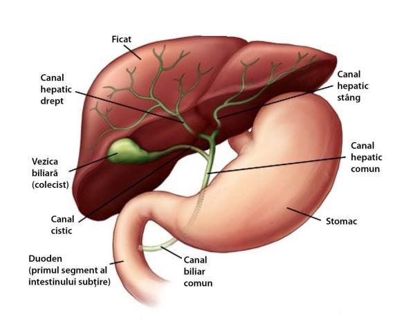 cancer vezica biliara tratament
