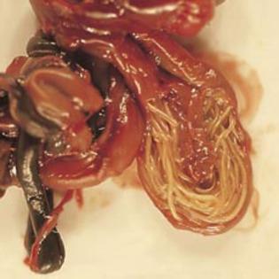Viermi intestinali simptome adulti. Semne că ai paraziţi intestinali   Click