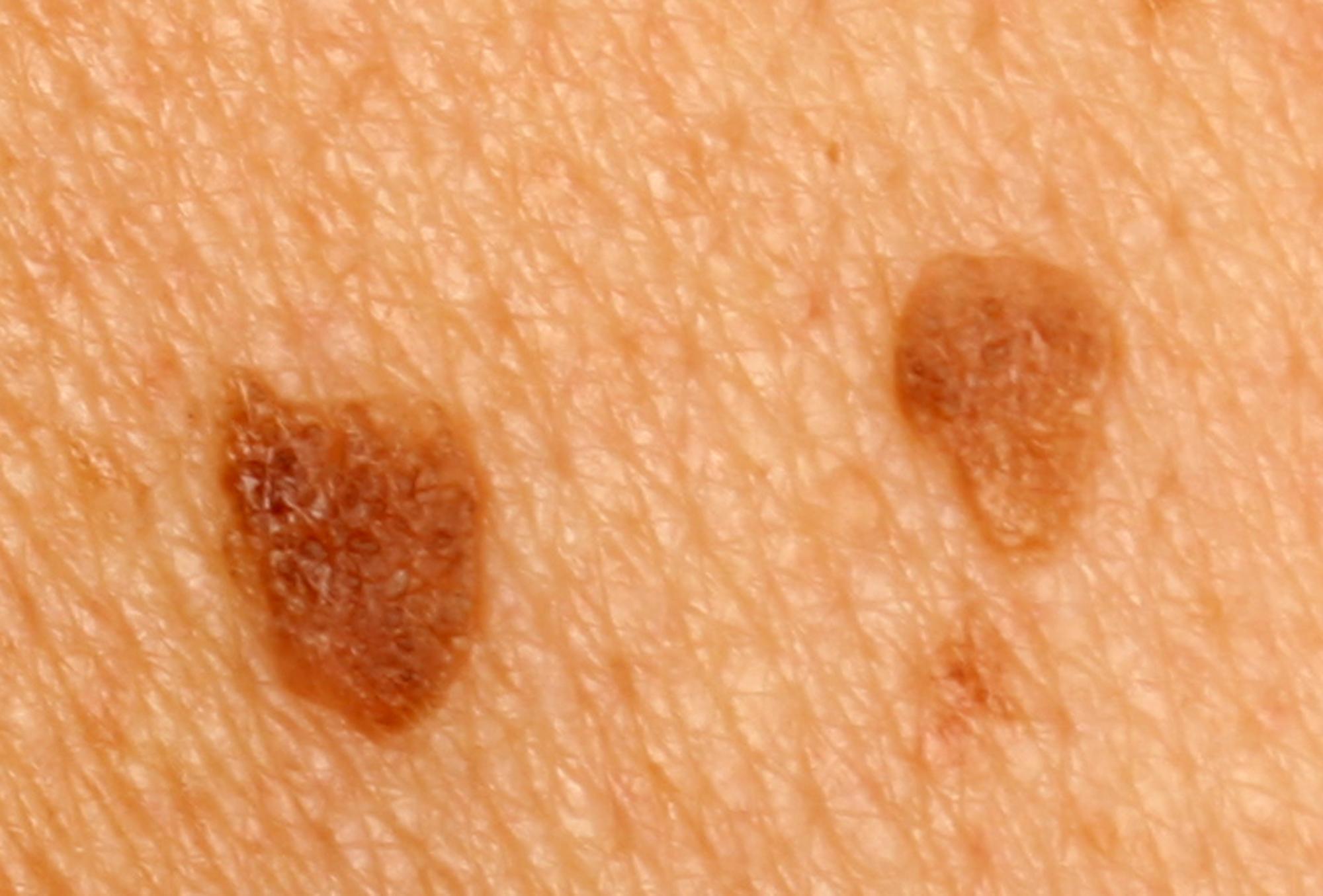 Tratament laser pentru îndepărtare papiloame, veruci seboreice și leziuni benigne ale pielii