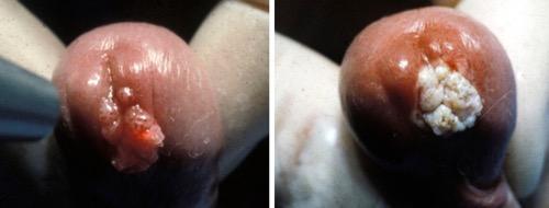 Condylomata acuminata behandeling, PDF ( MB) - Jurnalul de Chirurgie