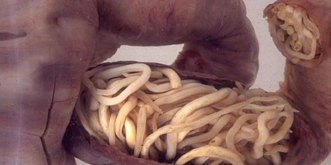 bradavice paraziti