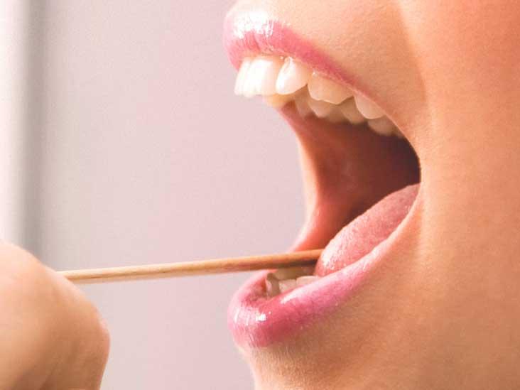 wart on my tongue)
