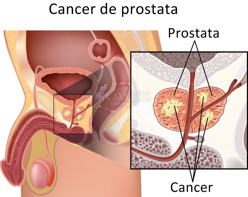 cauze cancer de prostata