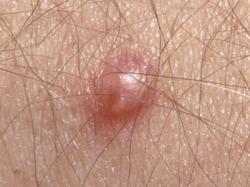 papillomavirus infection in males)