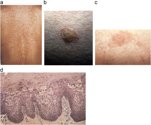papillomavirus skin cancer)