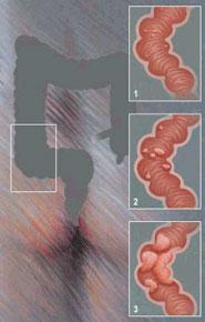 Sindromul colonului iritabil, o afectiune greu de depistat - cauze, simptome, tratament