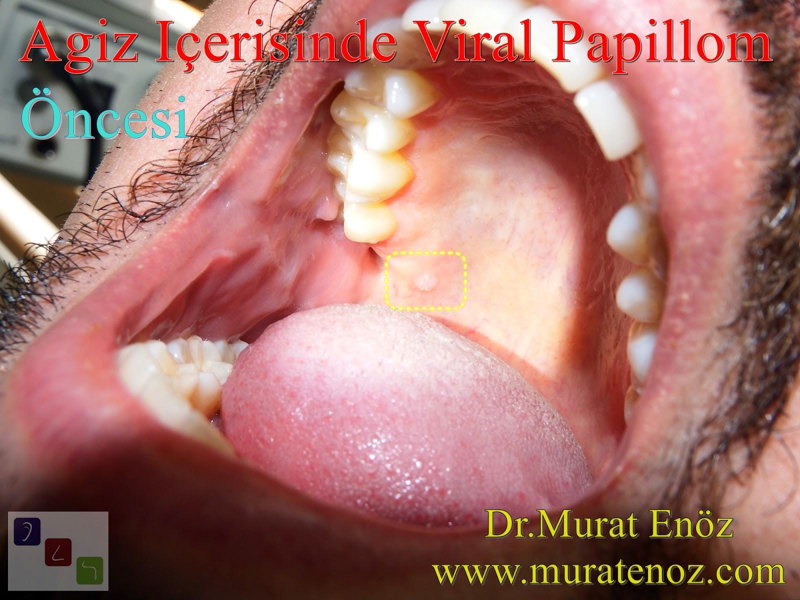 dilde papilloma tedavisi