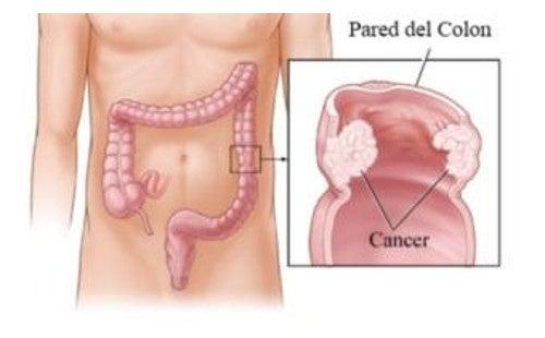 infecția giardiei fără diaree