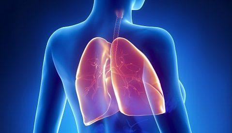 ce este cancerul de plamani papiloame multiple pe corp decât pentru a trata