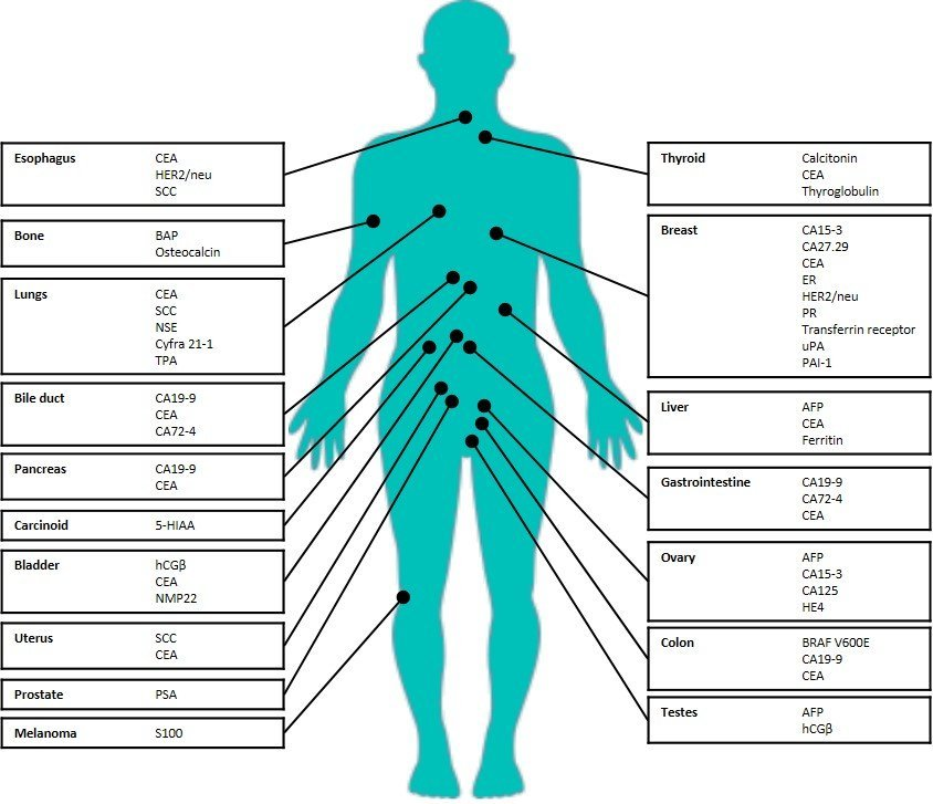 Cancer de prostata-mutatii ELAC2, RNASEL, BRCA2, SRD5A2