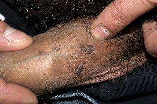 hpv male genital warts