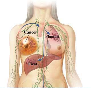 cancerul mamar stadii squamous cell papilloma tongue histology