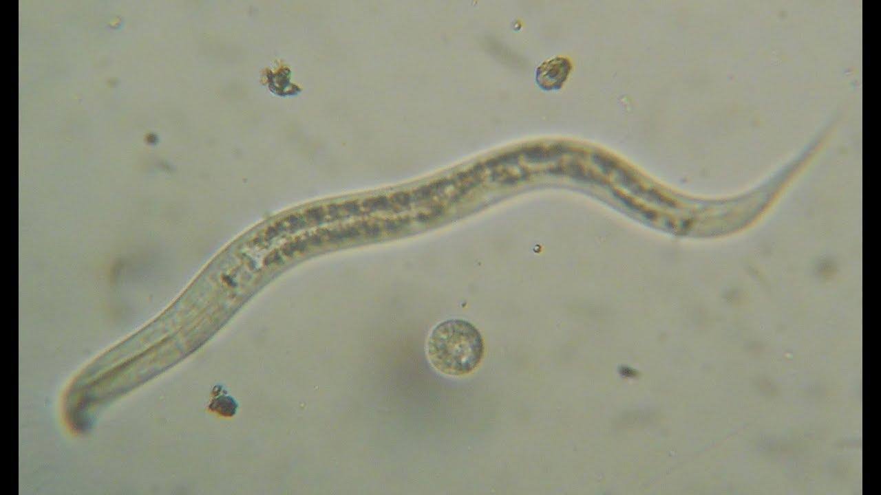 paraziți în microscopul urinei