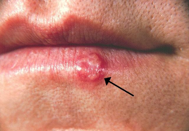 can hpv virus cause herpes)