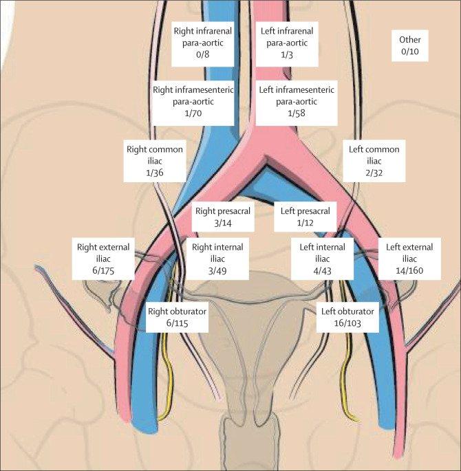 endometrial cancer lymphatic spread