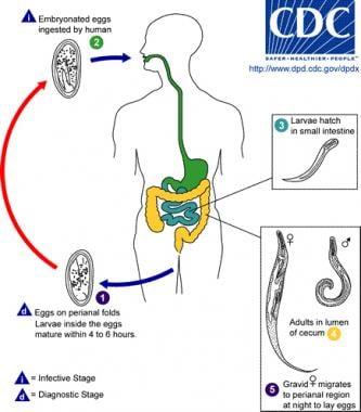 enterobius vermicularis definition
