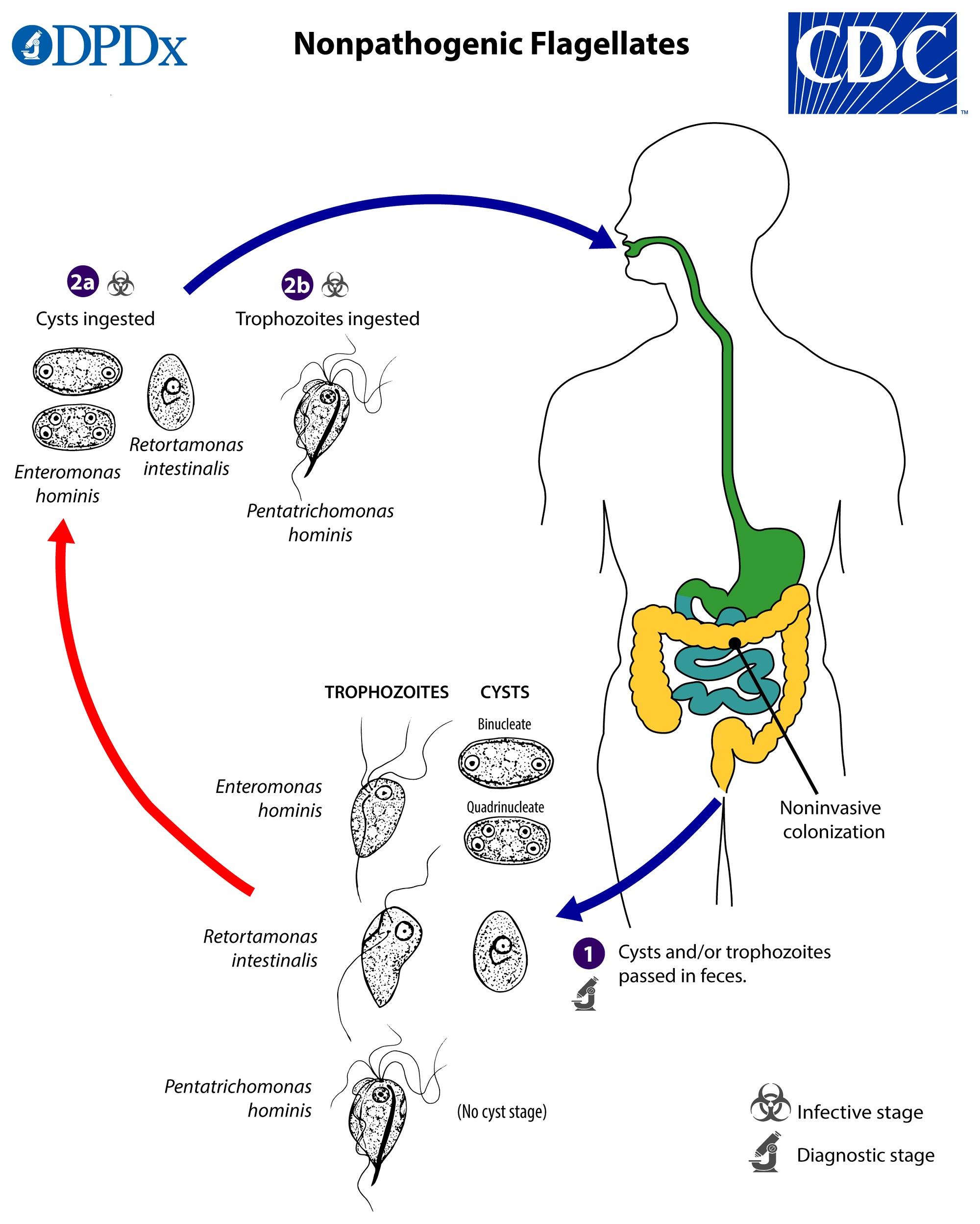 Diagnosticul și tratamentul infecției cu Giardia Intestinalis – Lambliaza