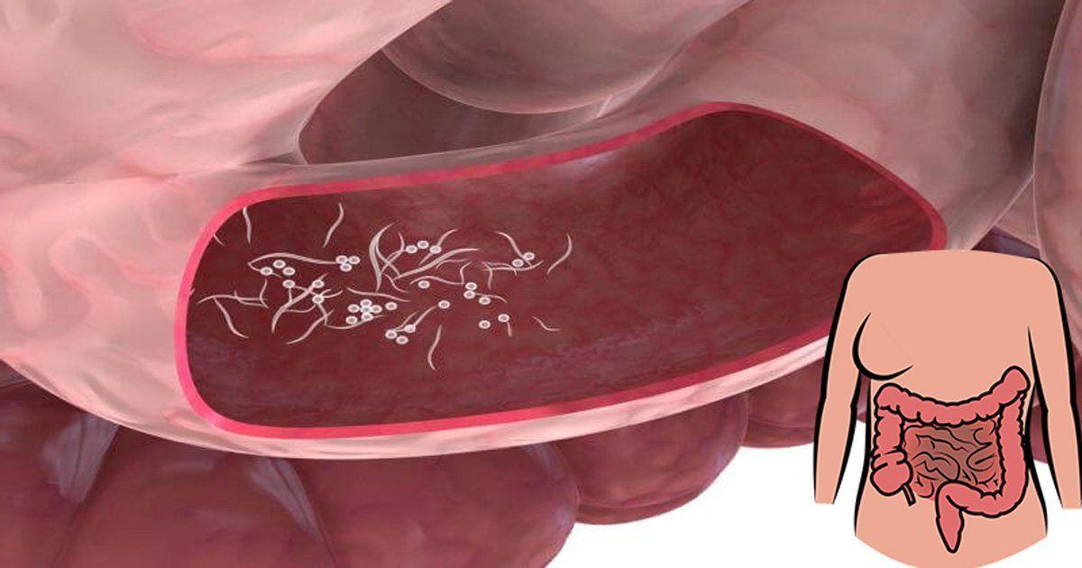Parazit ve hemoroid, Lupta Cu Hemoroizii 26 Zile - Ia-ti Viata Inapoi