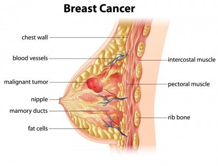 Cancerul Mamar - Tipuri • Tratament & Preventie | triplus.ro