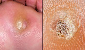 foot wart with black dots