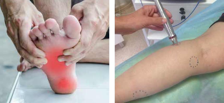 foot warts podiatrist or dermatologist