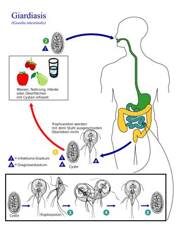 giardien simptom mensch behandlung