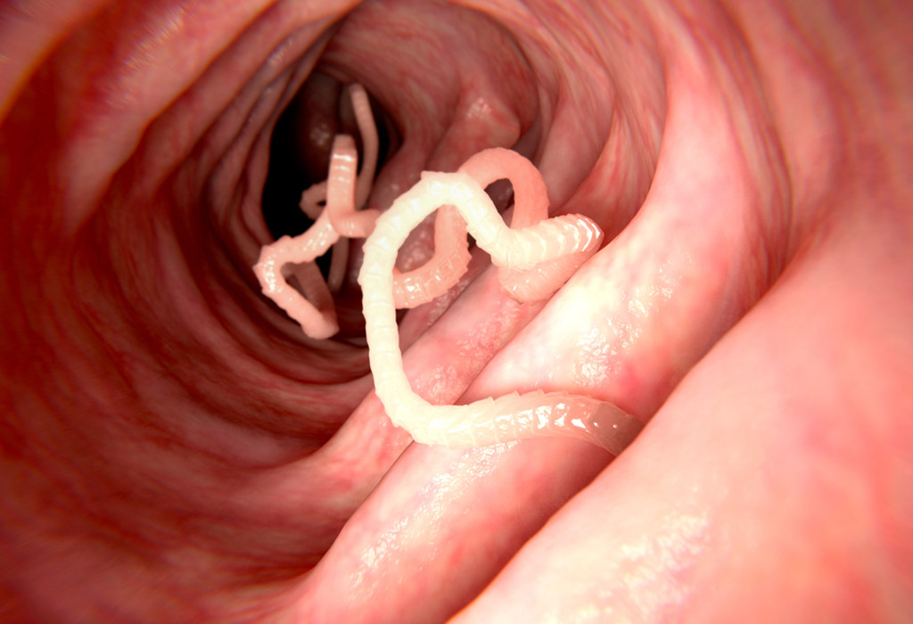 Helminth infection worms Helminth infection symptoms
