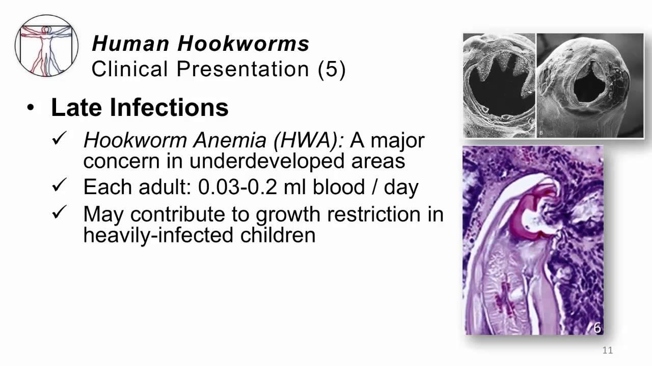 helminths parazit tratament