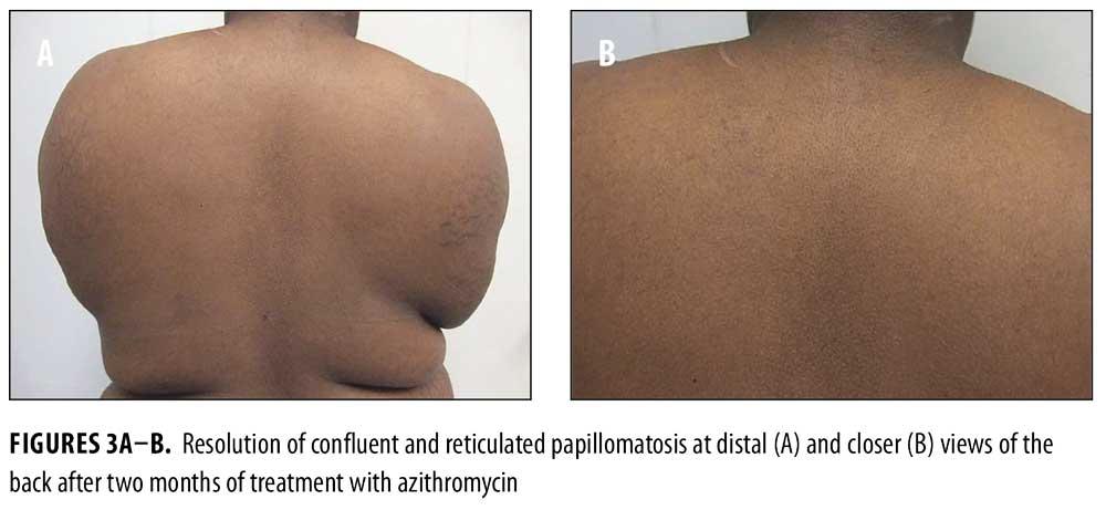vaccino papilloma virus ministero della salute recenzii pentru produse parazite