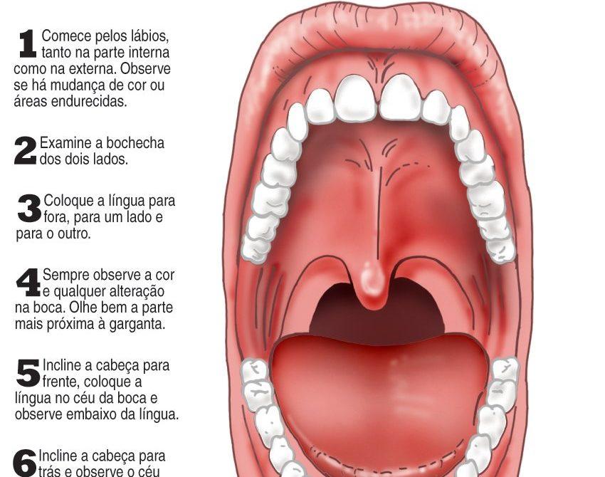 Hpv cancer garganta sintomas.