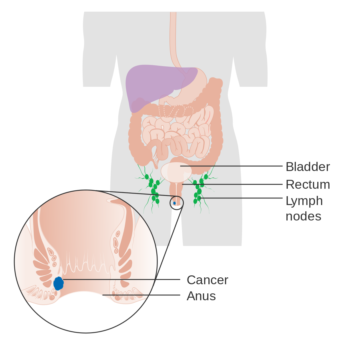 hpv causes rectal cancer
