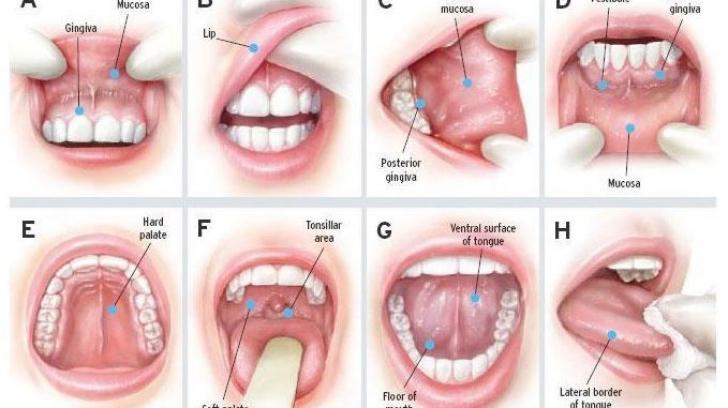 hpv in gat simptome)