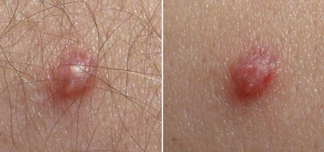 Hpv virus symptoms male. hhh | Cervical Cancer | Oral Sex Hpv virus symptoms male
