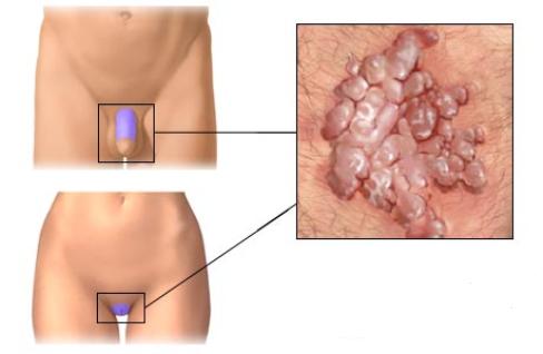 hpv virus u muzu