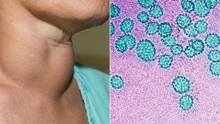 hpv virus with saliva