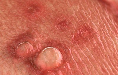 hpv warts popping