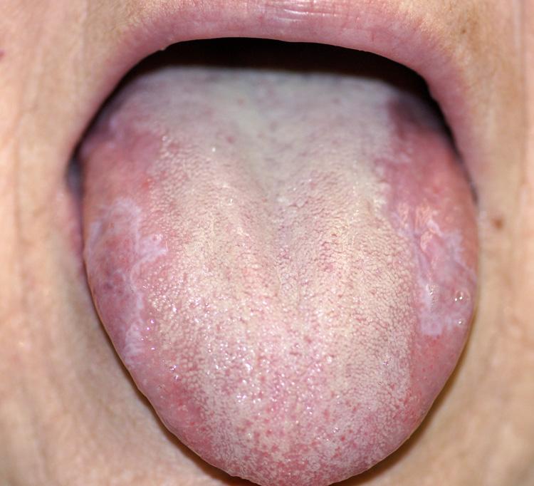 hpv white tongue)