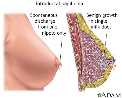 intraductal papilloma inverted nipple)