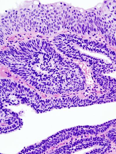 inverted papilloma of bladder