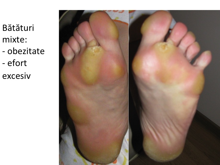 Melanomul, vindecat de o crema antibataturi?