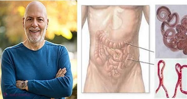 cura de slabire cu sare amara sintomi del papilloma virus in bocca
