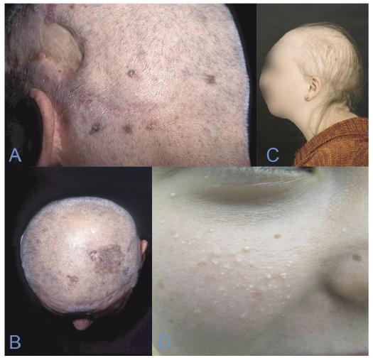 multiple basal cell papillomas