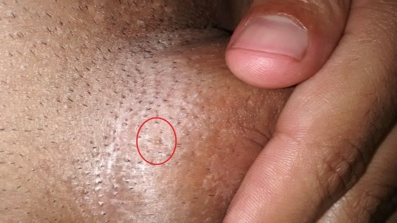 simptome de tenă în organism infecția partenerului cu negi genitale