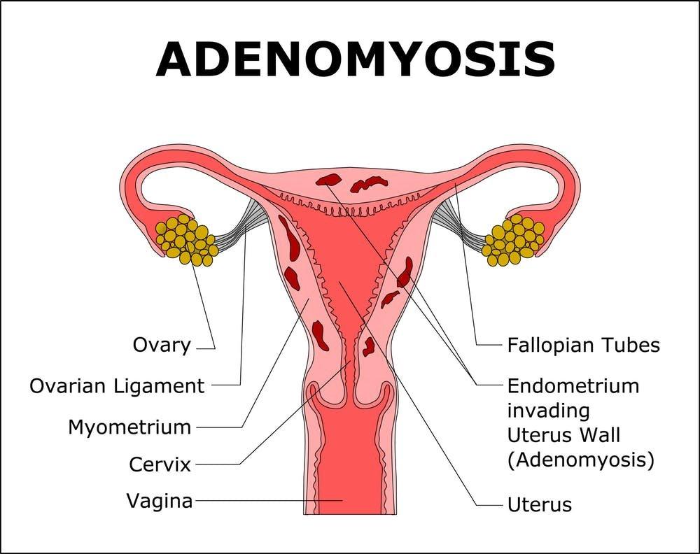 ovarian cancer no period)