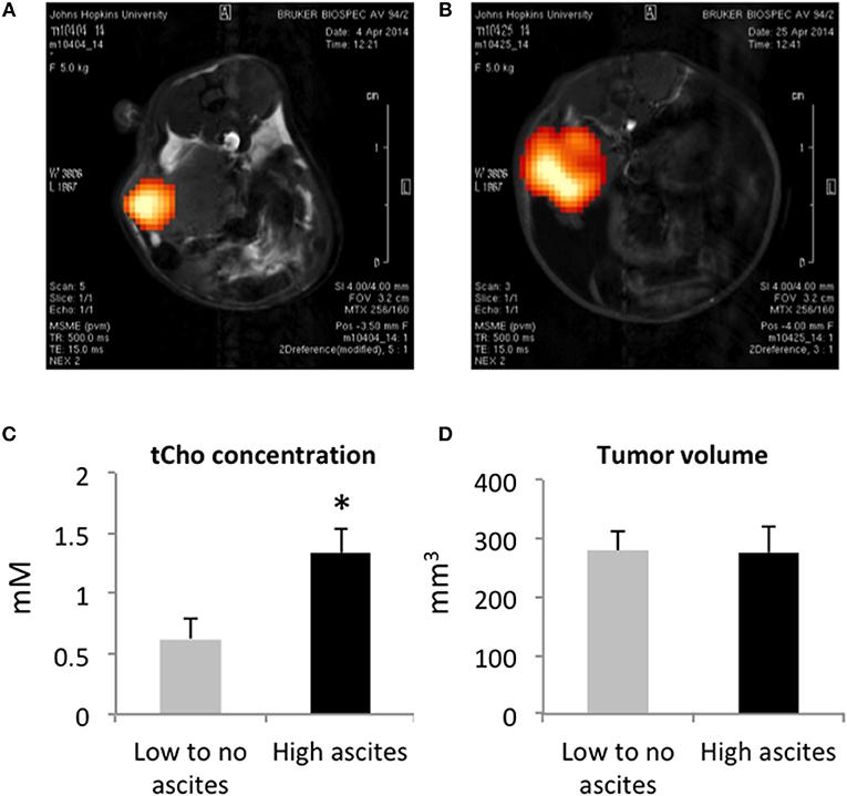 Ovarian cancer with ascites, Giardia ag elisa