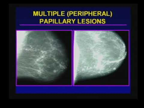 papillary lesion meaning